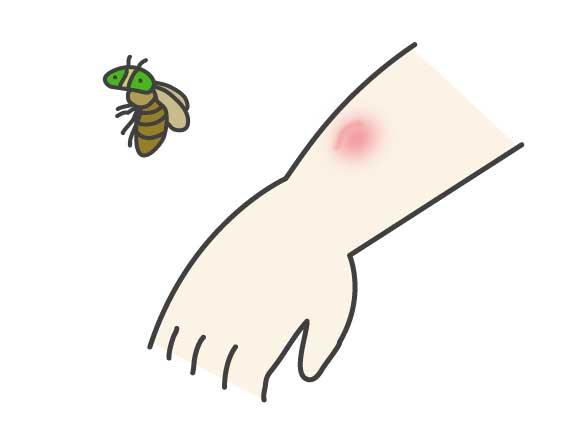 虫刺されの痕があぶの場合
