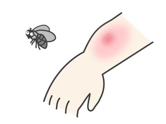 虫刺されの痕がブヨの場合
