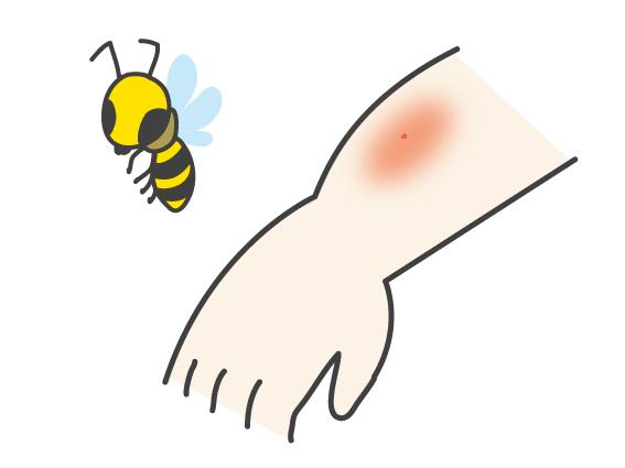 虫刺されの痕が蜂の場合