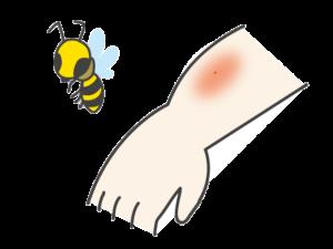 【虫刺されの対処】蜂(ハチ)に刺されたらアナフィラキシーショックに注意!