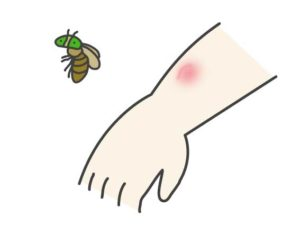 【虫刺されの対処】虻(アブ)に噛まれたら痛いです!