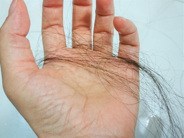 女性が薄毛になっていく不の育毛サイクルとは?