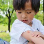 虫刺され痕をキレイに治したい!痒みをおさえる医薬品と虫刺され痕を残さない対処方法