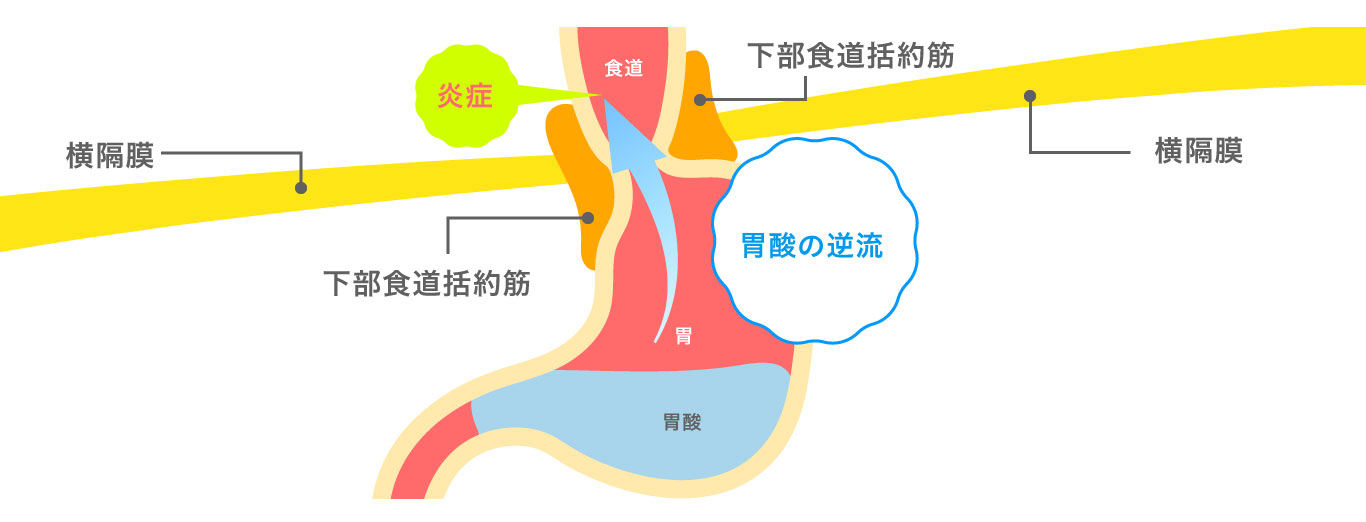 逆流性食道炎による胸やけは胃酸の逆流が原因です!