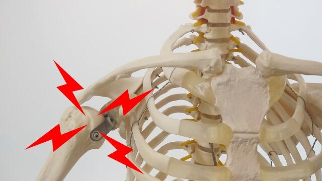 【四十肩の症状】四十肩以外に肩が痛む2つの原因