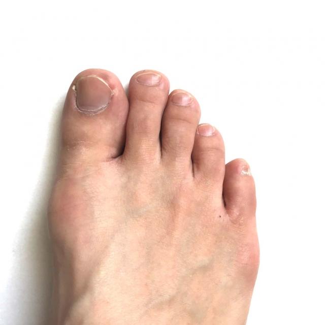 子供だけじゃない!大人にも感染する手足口病!大人の手足口病は重症化する?