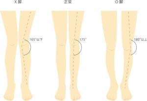 X脚とO脚の特徴