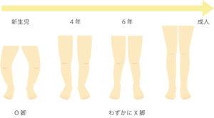 脚の生理的変形